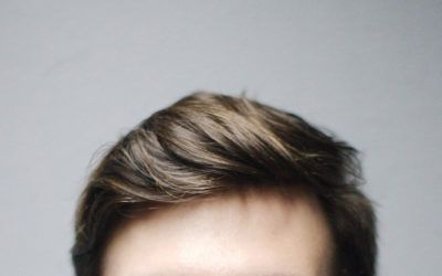 Jaki wpływ mają androgeny na włosy u mężczyzn?