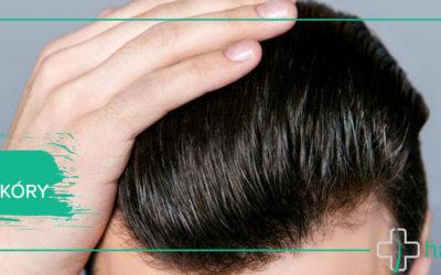 Atopowe Zapalenie Skóry Głowy (AZS)