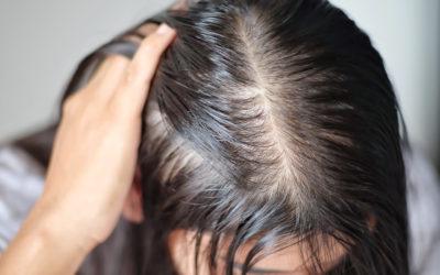 Nadmierne przetłuszczanie skóry głowy – łojotok